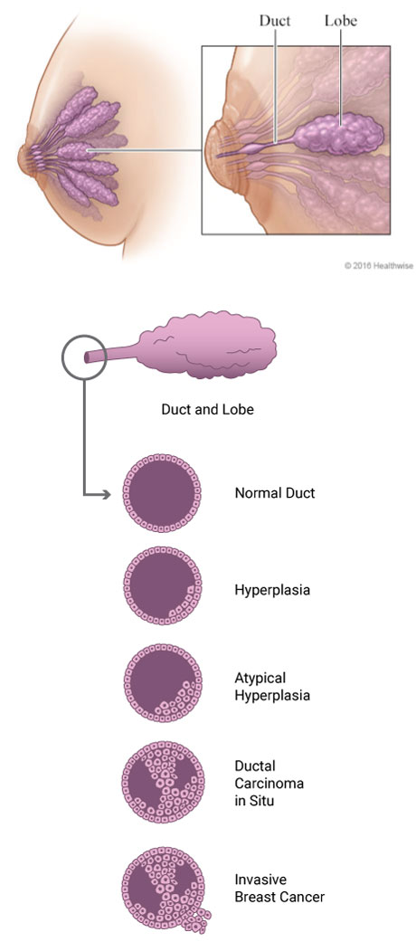 Breast Cancer: Atypical Ductal and Lobular Hyperplasia