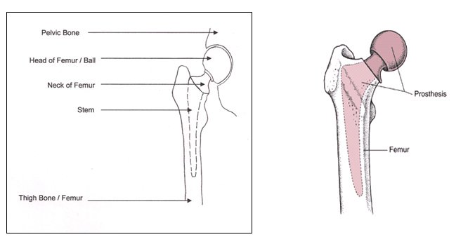 Your Guide After A Hip Fracture Repair With Replacement