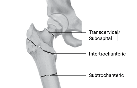 Your Guide After a Hip Fracture: Treating a Broken Hip