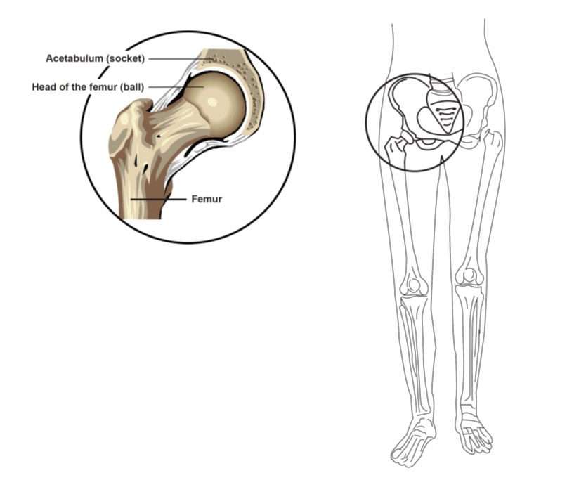 Your Guide After A Hip Fracture When Youre Having Surgery For A
