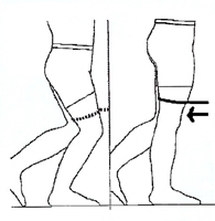 kneerep-exercise-after-7.jpg