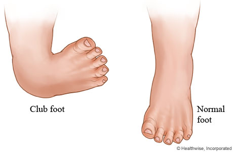 Pictures of clubbed feet Clubfoot: Causes and treatments - Medical News Today