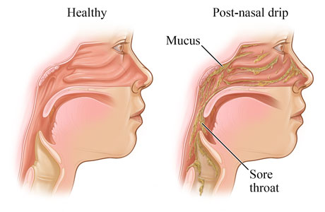 Sore throat caused by post-nasal drip