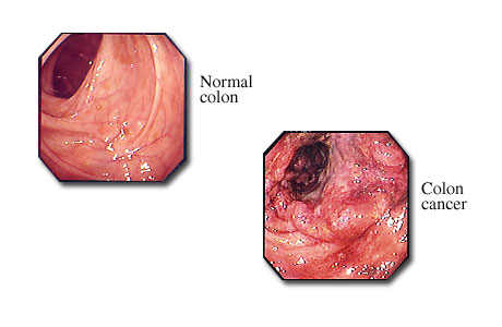 the causes and main treatments for colon cancer Colorectal cancer (crc), also known as bowel cancer and colon cancer, is the  development of  some of the inherited genetic disorders that can cause  colorectal cancer include  treatments used for colorectal cancer may include  some combination of  the most common form of colon cancer is  adenocarcinoma other.