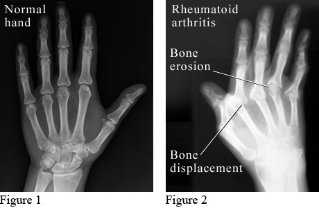 X-Ray of Rheumatoid Arthritis in the Hands