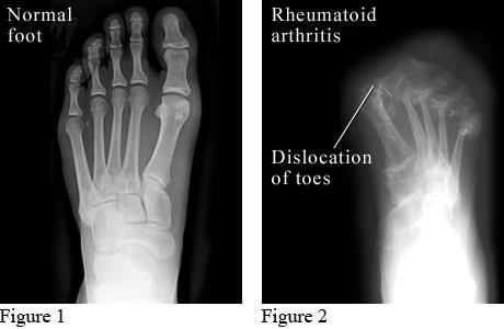 X Ray Of Rheumatoid Arthritis In The Feet