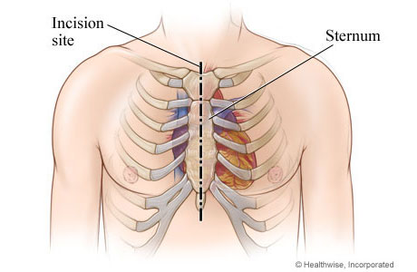 Aortic valve replacement surgery ccuart Images