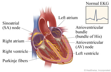 Av node ablation for atrial fibrillation ccuart Images