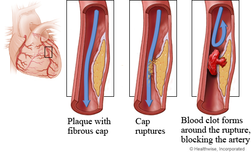 what happens to a thrombus after it forms