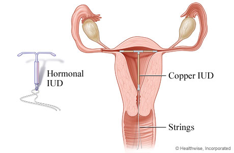 Iud removal topic overview picture of an intrauterine device iud ccuart Choice Image
