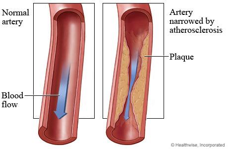 artherosclerosis causes and effects The american heart association explains peripheral artery disease (pad) as a type of occlusive disease that affects the arteries outside the heart and brain the most.