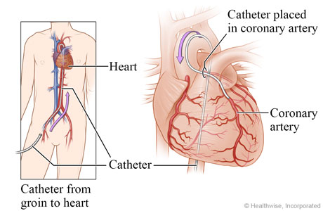 Image result for heart procedure going through groin