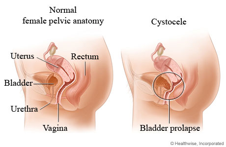 diagram of price elasticity of demand diagram of rectocele bladder prolapse (cystocele)