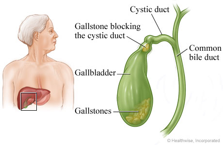 Gallstones gallbladder and gallstones ccuart