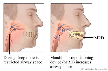 Mandibular Repositioning Device
