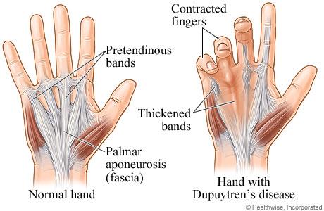 Broken Finger (phalanx fracture) — Bone Talks