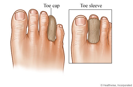 Calluses and Corns - Topic Overview