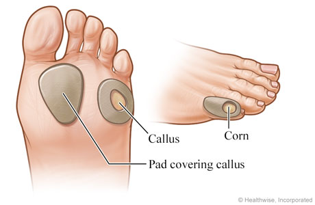 Callouse on bottom of foot
