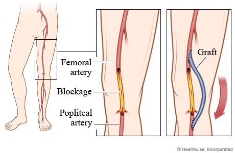 Peripheral Arterial Disease Of The Legs Overview