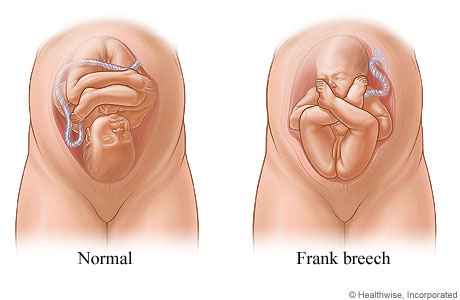 Sex positions during the third trimester images 51