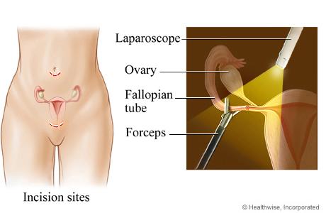 Tubal Ligation and Tubal Implants