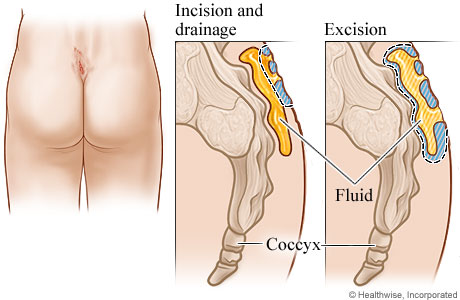 Location And Treatment For Pilonidal Cyst