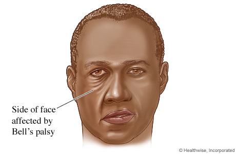 bell's palsy - topic overview, Cephalic vein