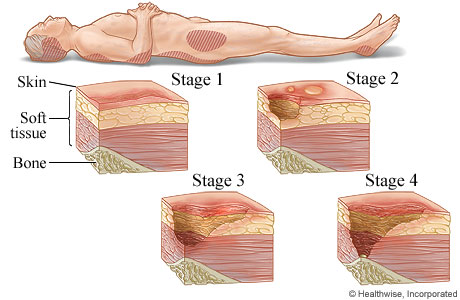 the explanation and treatment of decubitis ulcers or bed sores Hospitals spend about $5 billion annually for treatment of pressure ulcers  of pressure ulcers signs of pressure ulcer infection  of bed sores in those who .