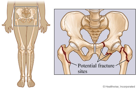 Pelvic And Hip Fracture Sites