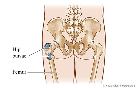 Bursitis of the Hip