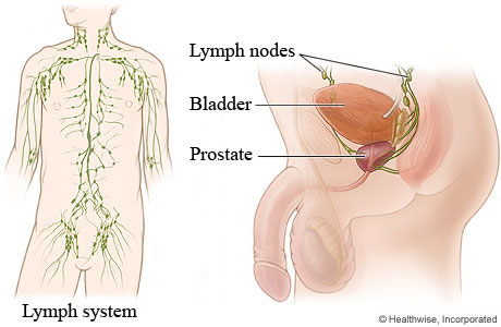 Lymph Nodes In The Male Retroperitoneum And Pelvis