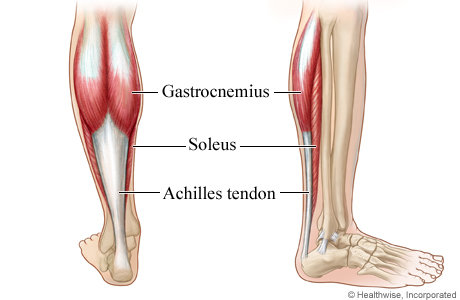 Calf Muscle Injury Topic Overview