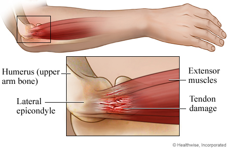 Tennis Elbow Anatomy Lateral Side View