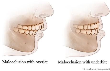 malocclusion