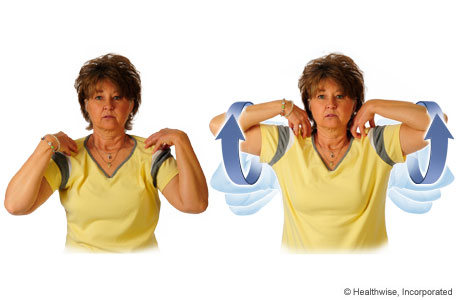 exercises to do after mastectomy