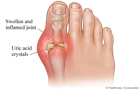 what causes excess uric acid in urine uric acid causes joint pain natural cure for gout in big toe