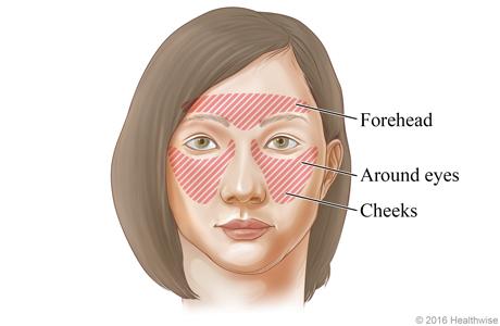 Sinus headache: Areas of pain