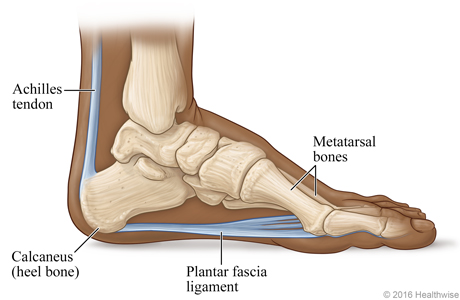 heel home foot podiatry fasciitis greenville ossatron clinic sc foothills w planter planters simpsonville eswt greer doc surgery