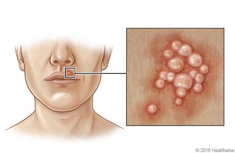Herpes simplex virus type 1 symptoms (cold sores)