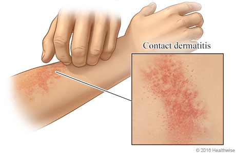 Rash on hands spread to anal area