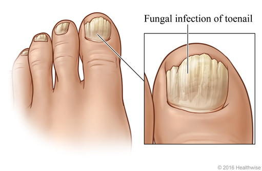 Toenails Showing Typical Symptoms Of The Most Common Fungal Nail Infection With Close Up