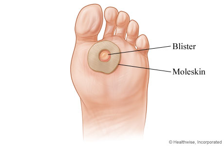 How To Treat Blisters On Feet From New Shoes