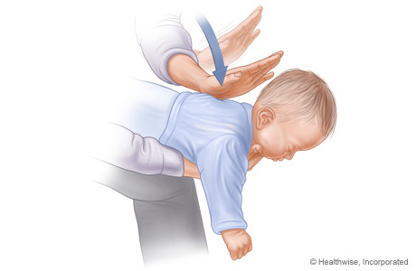 Picture C: Position of baby on arm for Heimlich manoeuvre, showing position and direction of back slaps
