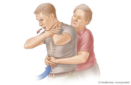 Picture B: Side view of Heimlich manoeuvre in an adult or child, showing position of hands and direction of thrust