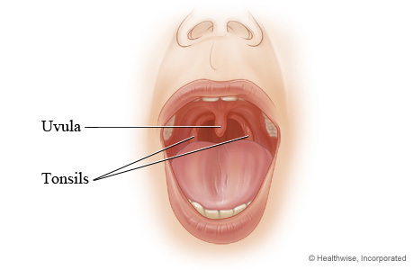 Tonsils Adenoids And Uvula