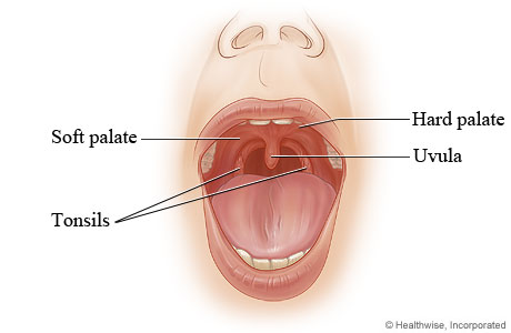 Normal and Cleft Palate