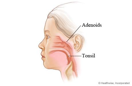 Tonsils Adenoids And Uvula