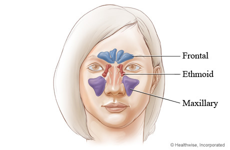 Sinusitis and facial numbness