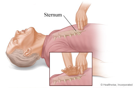 Where to place hands on sternum for chest compressions