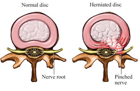 herniated disc and pinched nerve